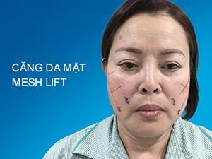 Căng da mặt Mesh Lift