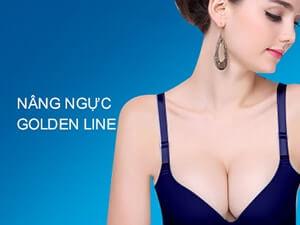 Nâng ngực Golden Line