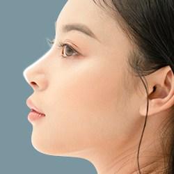 Nâng mũi S Line + chỉnh xương gồ