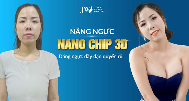 Nâng ngực Nano chip 3D – Tôn tạo vòng 1 đầy đặn như ý