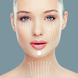 Tái phẫu thuật căng da mặt