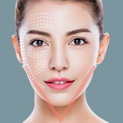 Căng da mặt bằng chỉ vàng 24k Hàn Quốc