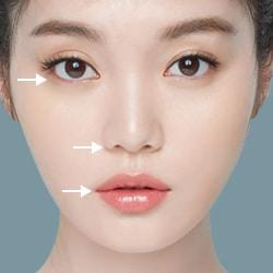 Midface kết hợp căng da mặt bằng chỉ V-lift