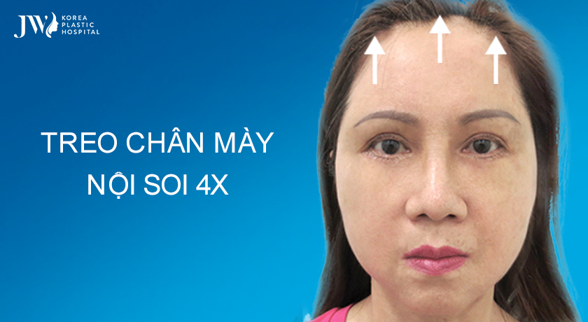 Treo chân mày nội soi 4X trẻ hóa toàn diện gương mặt