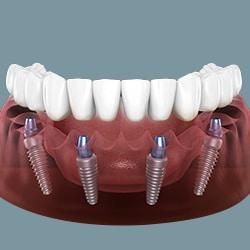 Implant toàn hàm All on 4