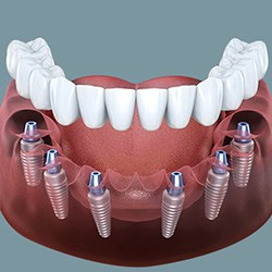 Implant toàn hàm All on 6