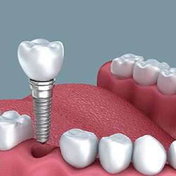 Răng sứ kim loại Lava