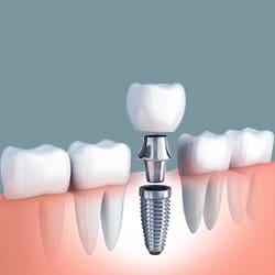 Răng tạm cố đinh trên implant