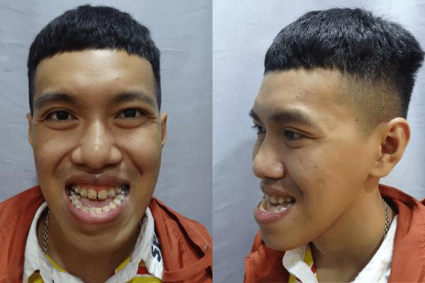 Bác sĩ Tú Dung cắt hàm giải cứu chàng trai móm nặng 26 năm không khép được miệng