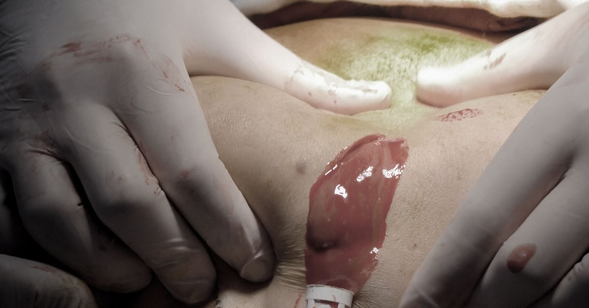 Hoại tử vòng ba sau tiêm filler 'đội lốt' collagen
