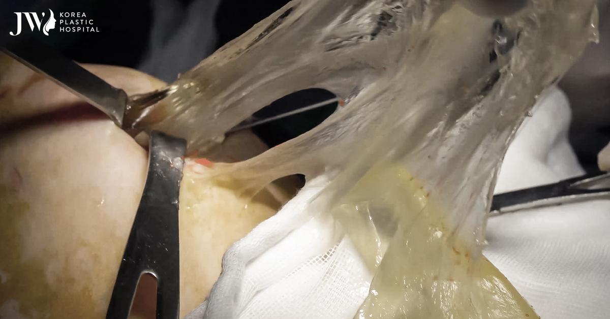 Phẫu thuật thành công cho ca tràn dịch silicon khi nâng ngực tại spa chui