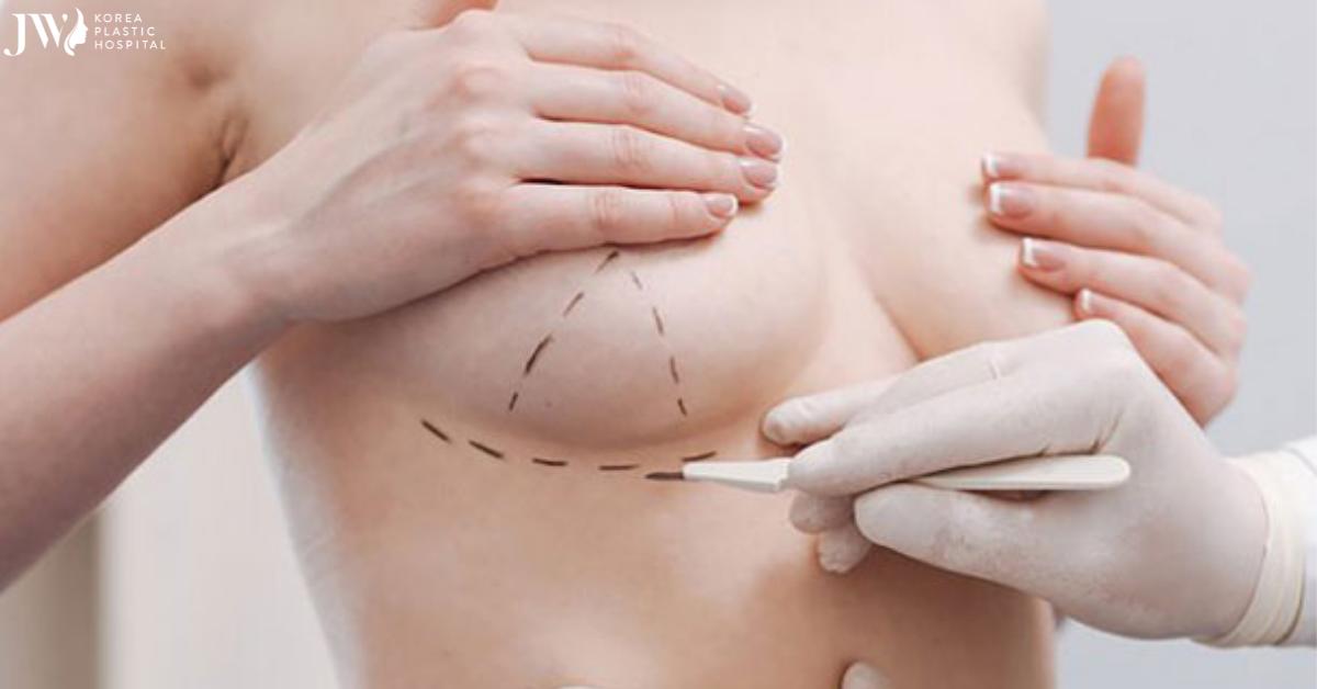Điểm danh các phương pháp nâng ngực cho từng đối tượng